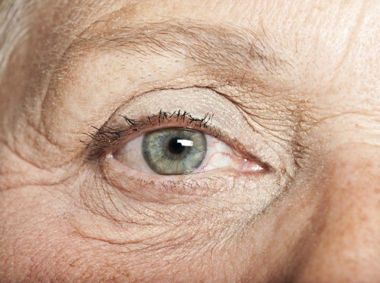 Traitement de la dégénérescence maculaire liée à l'âge (DMLA) - Se-soigner.info